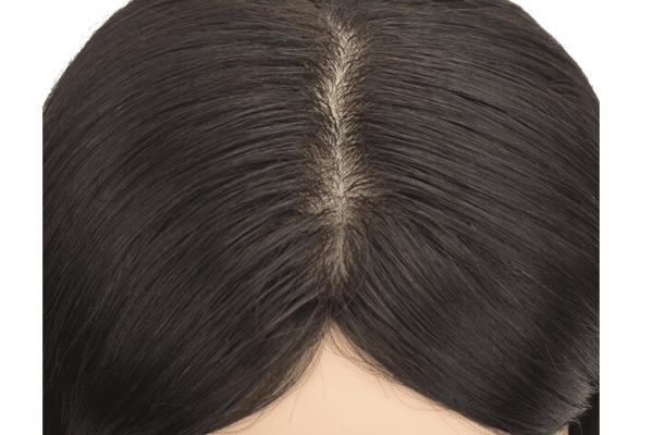 ¿Qué soluciones hay para alopecia de tipo difuso o androgenética femenina en posticería?