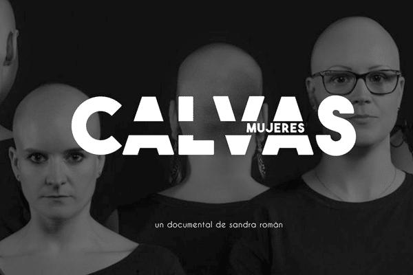 """¡¡¡CONSEGUIDO!!! Ayuda a financiar el documental """"Mujeres Calvas"""": visibilización y normalización de la alopecia femenina ¡fuera tabús!"""