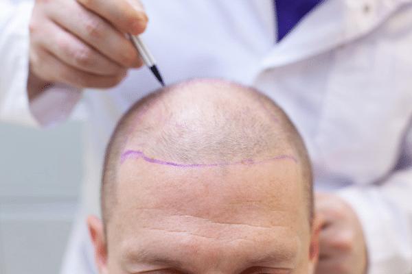 ¿Qué tipos de alopecia existe y cómo se combate? ¿Cuáles son aptas para transplante capilar o qué tratamientos existen?